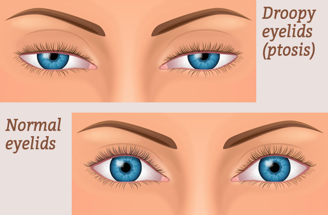 An example of ptosis; a condition fixable with oculoplastics